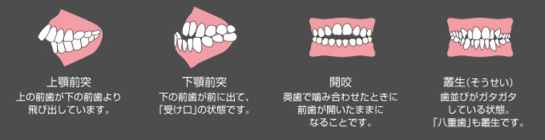 orthodontic_02